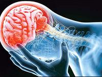 هرسال 100هزار ایرانی سکته مغزی میکنند