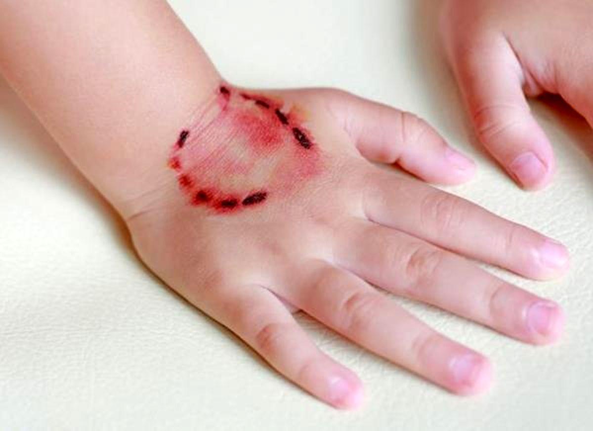 راههای انتقال یک بیماری خطرناک