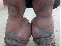 پاهای ۱۰۰کیلویی مرد پاکستانی+تصاویر