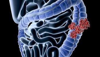 شمار جوانان مبتلا به سرطان روده در جهان افزایش یافته است