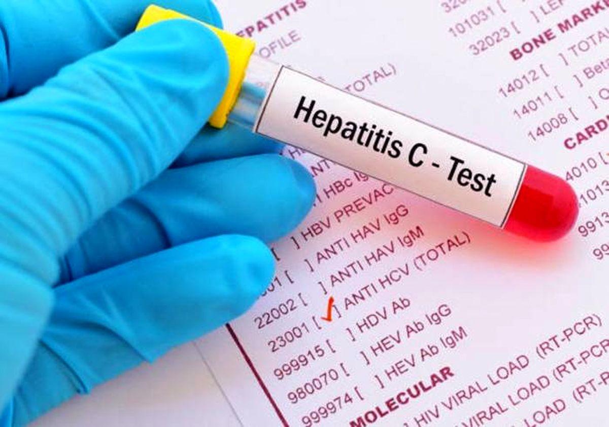 انواع هپاتیت و راههای انتقال آن