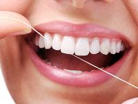 3نکته مهم درباره نخ دندان
