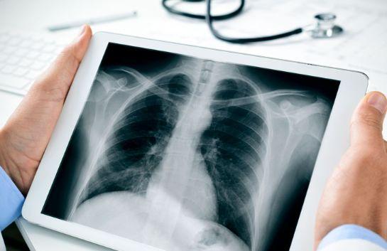 وقتی درد سینه با عضلات پیوند میخورد