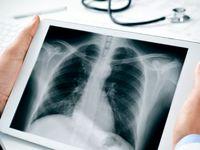 فوبیای اشعه ایکس چیست؟