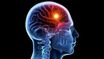 تحریک الکتریکی به تقویت حافظه کمک میکند