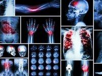 آشنایی با سرطان استخوان