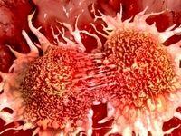 هزاران زن در معرض سرطان تخمدان