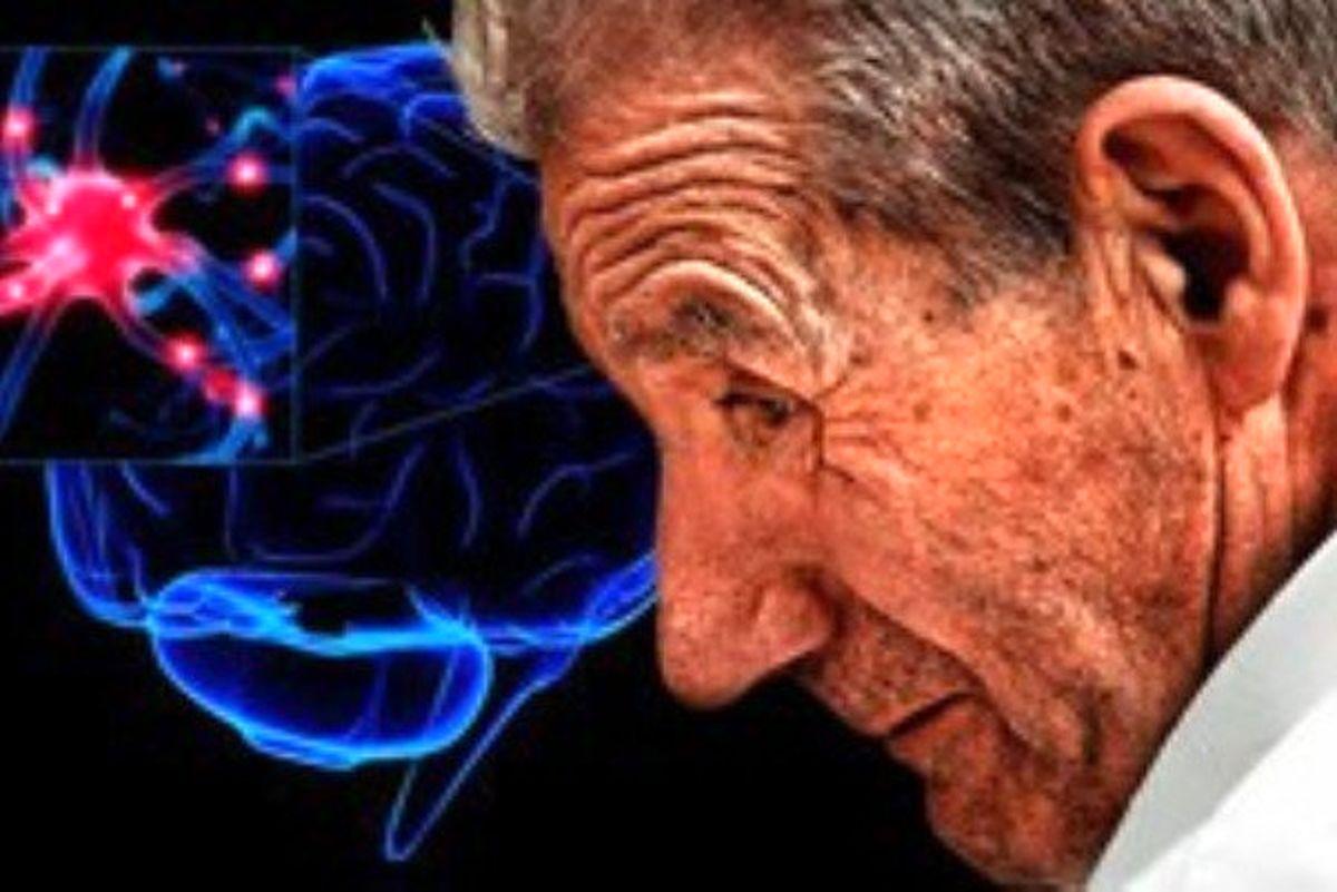 مشکلات خواب مرتبط با بیماری پارکینسون