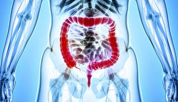 راهکارهایی برای پیشگیری از دیورتیکولوزِ روده بزرگ