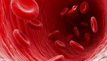فاکتورهای پرخطر ابتلا به سرطان خون را بشناسید