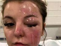 انفجار تخم مرغ پخته شده دختر 22ساله را نابینا کرد +عکس