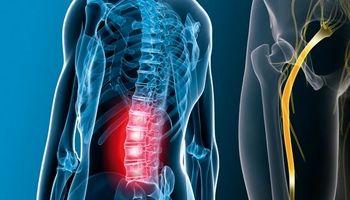 چگونه دردرهای سیاتیک را درمان کنم؟
