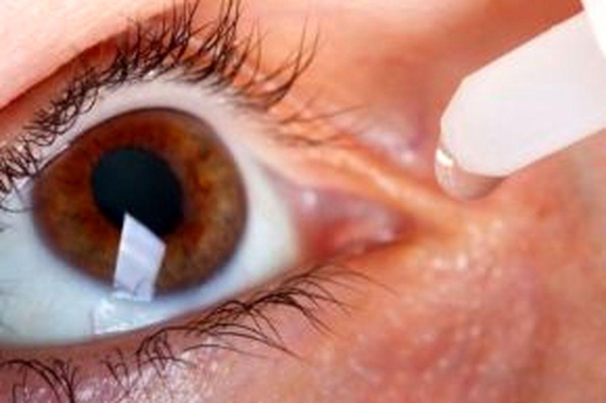 2 ادعا در ماجرای کور شدن یک چشم