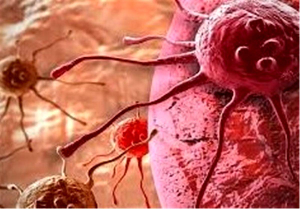زنان علائم خاموش این سرطان را بدانند