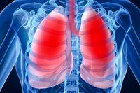 چگونه سیگار کشیدن باعث سرطان ریه میشود؟