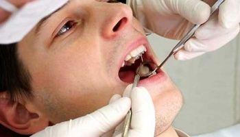 بازار مکاره کاشت دندان از ۲ تا ۵۸ میلیون تومان!
