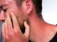۱۵ درمان فوری برای آفتابسوختگی