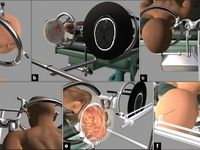 جراحی تومور مغزی با یک روش کمتهاجمی