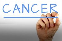 انواع مختلف سرطان و نشانههای اولیه آنها
