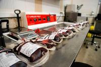 کدام گروههای خونی بیشتر به کرونا مبتلا میشوند؟