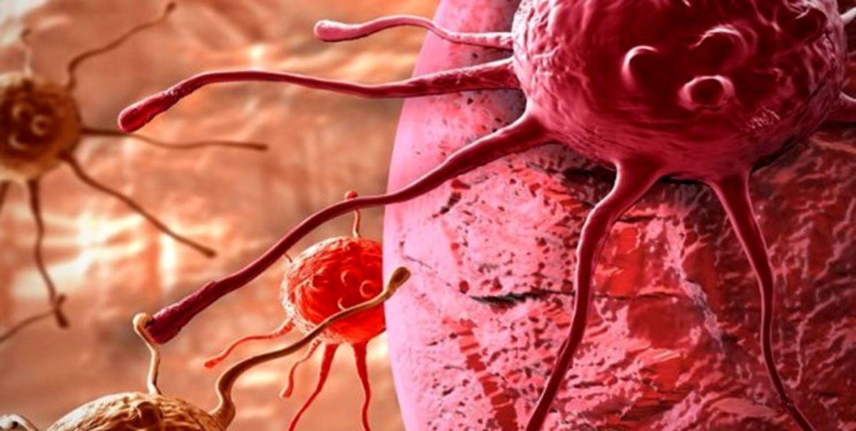 ۷ درصد سرطانها ارثی هستند
