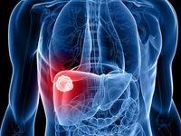 چگونه از بروز سرطان کبد پیشگیری کنیم؟