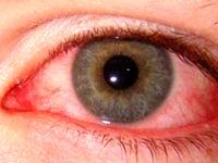 عارضه چشم صورتی نشانه ویروس کروناست