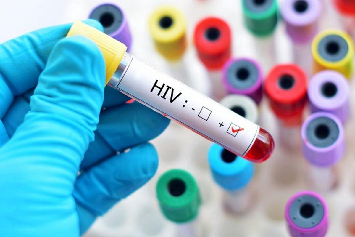 هر آنچه درباره ایدز باید بدانید!