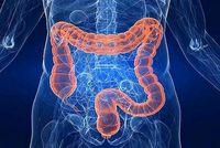سرطان روده سالانه چند نفر را میکشد؟