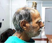 درآمدن شاخ 10 سانتی بر روی سر یک مرد +عکس