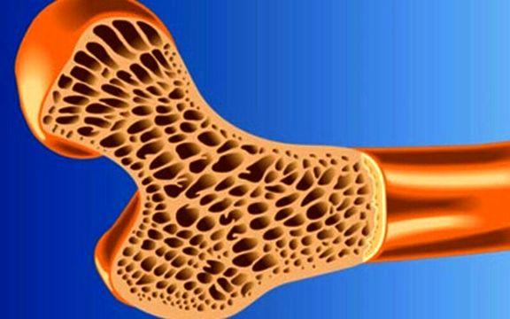 تولید استخوان مصنوعی در ایران با چاپگر سهبُعدی