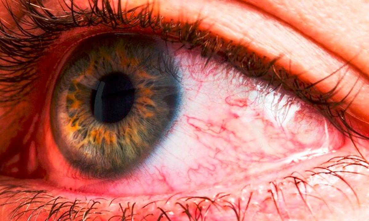 دانستنیهایی درباره لنفوم چشم