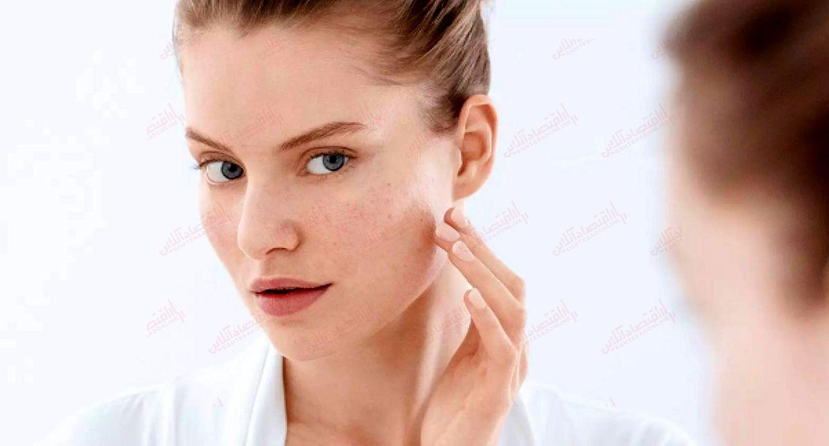 چگونه از ایجاد جوش های پوستی جلوگیری کنیم؟