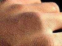 درمانهای خانگی برای خشکی پوست