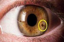 لکهای چشم نشاندهنده چیست؟