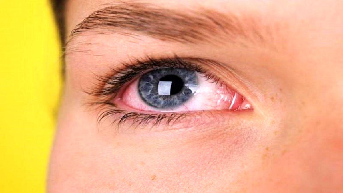 مراقب عوارض چشمی ویروس کرونا باشید