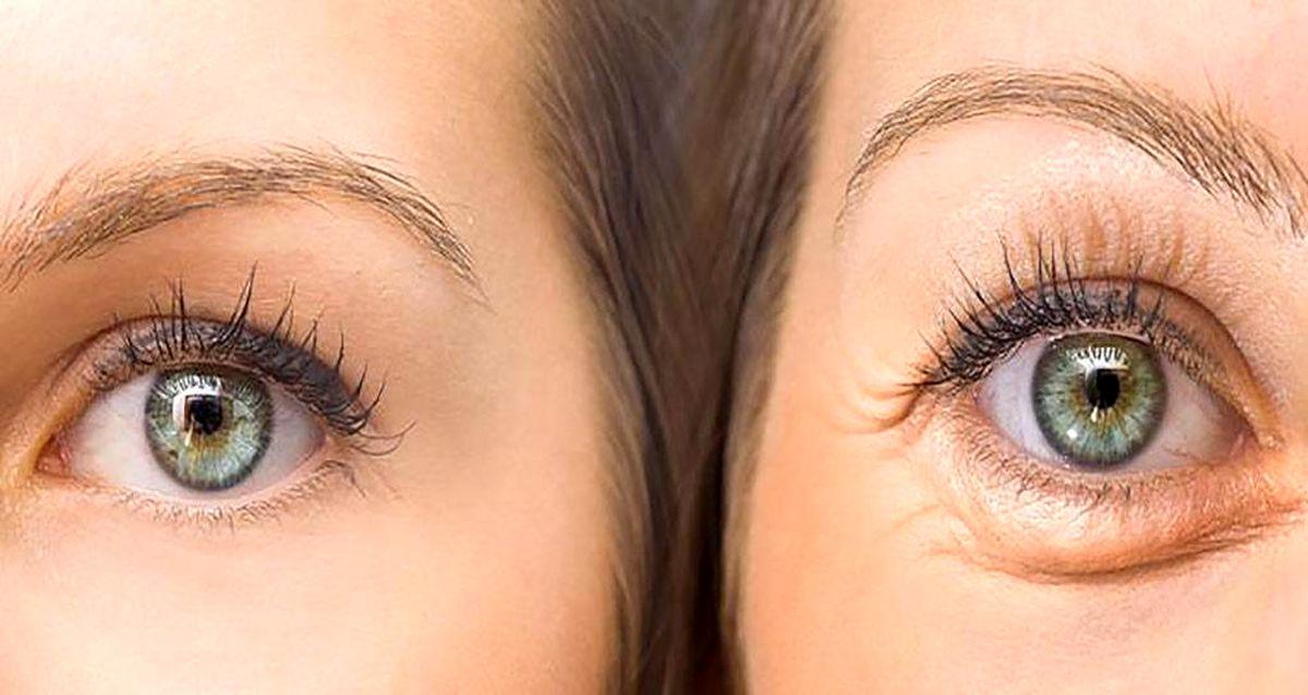 قهوه، بهترین و ساده ترین درمان برای چشم های پف کرده