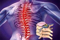 روش جدیدی برای درمان آسیبهای نخاعی