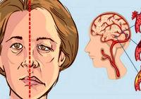 عاملهای خطر سکته مغزی در خانمها