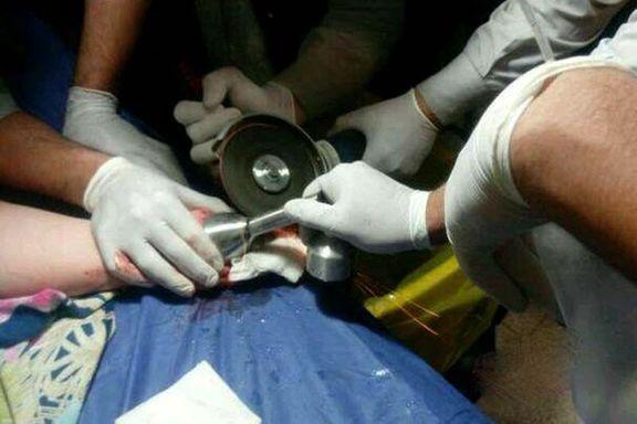 دست کودک ۱۸ماهه قزوینی از چرخ گوشت رهاسازی شد