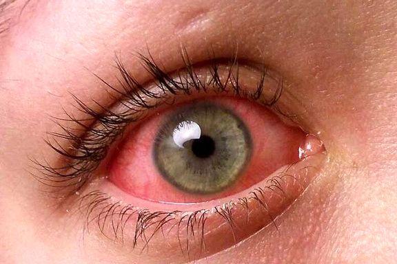 ۵دلیل احتمالی قرمزی چشمها