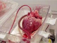 عمل اهدای قلب با کمک اورژانس هوایی