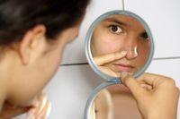 دستکاری این جوشها صورت شما را میکشد! +عکس
