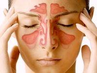 درمان گرفتگی سینوزیت بدون مصرف دارو