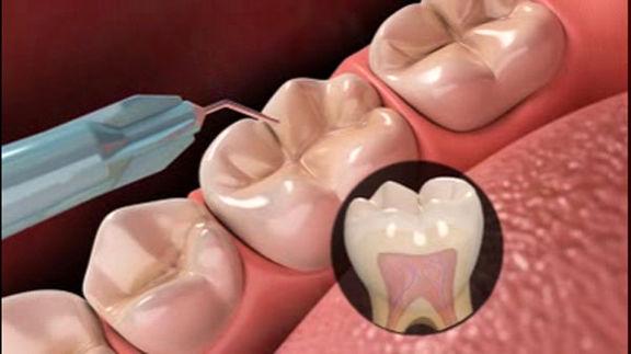کشف روش تولید مینای دندان! +عکس