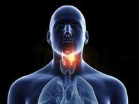 چرا گلو درد دارم؟