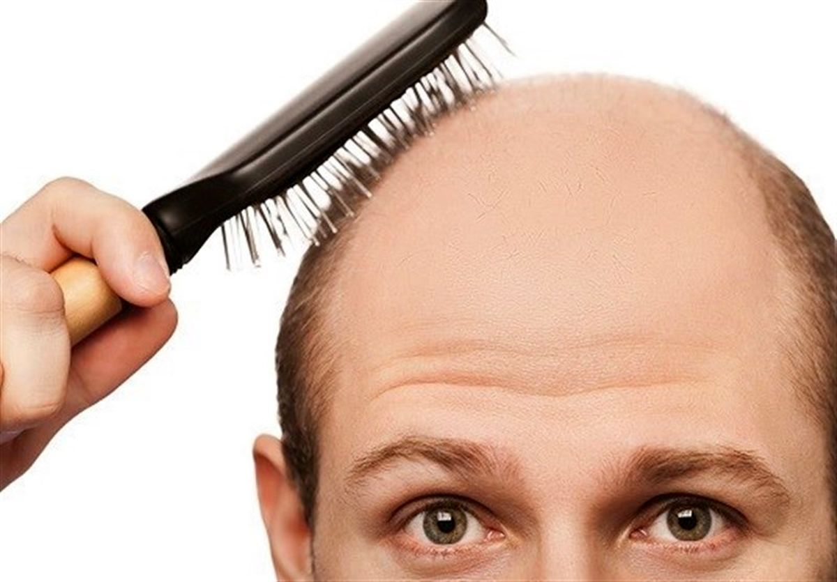 پیشگیری از ریزش موها با ۷خوراکی