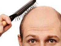 جلوگیری از ریزش مو با