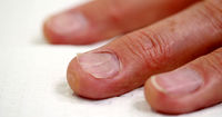 آیا کمبود روی منجر به دیستروفی ناخن میشود؟