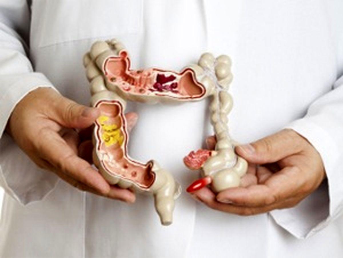 نشانههای سرطان روده بزرگ چیست؟